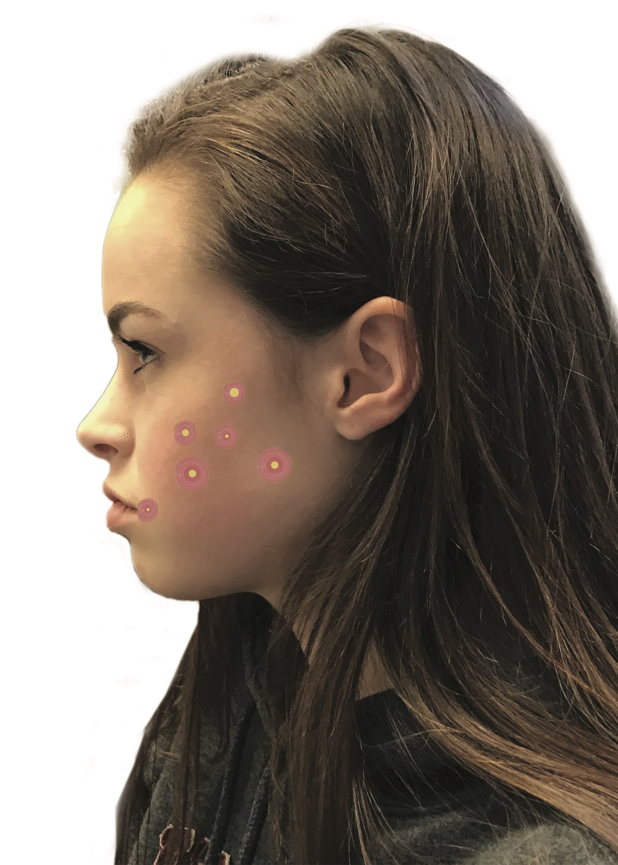 Acne, a chronic inflammatory skin condition, is characterized by blackheads, whiteheads, pimples and deeper lumps that occur on the face, neck, chest, back, shoulders and upper arms.