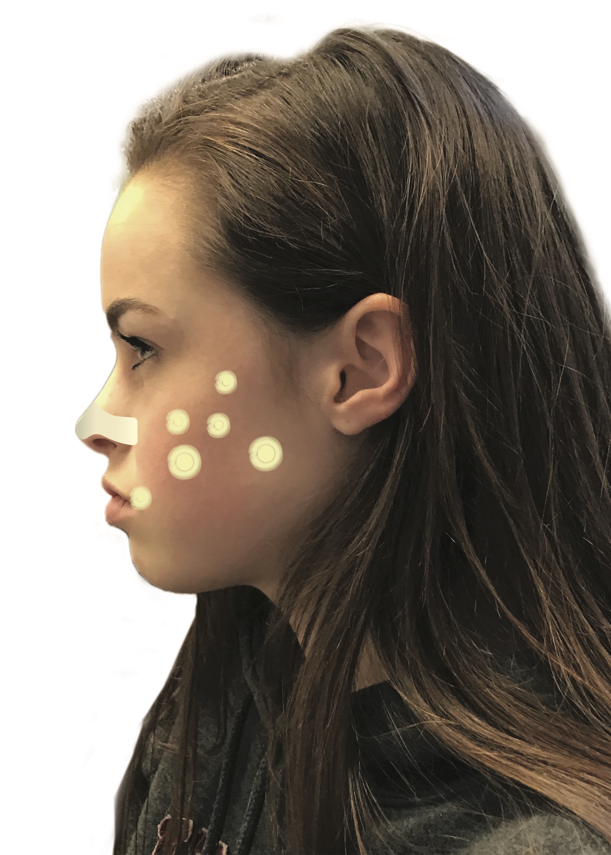Treatment options for a variety of breakouts can range from over-the-counter creams and cleansers to prescription oral medication that sometimes requires supplementary medication such as oral contraception