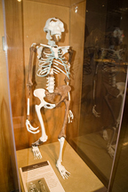 cc Cleveland Natural History Museum | Donald Johanson's discovery of a 3.2 million year-old Australopithecus afarensis specimen shook the world of anthropology. The image is common among history and biology textbooks as an important link between human and their past.