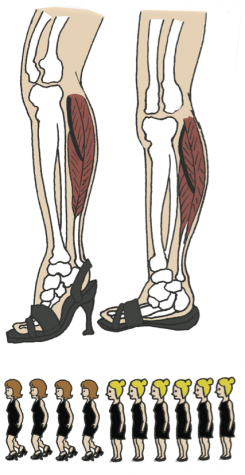 The bones in the foot are restricted in the heel, which causes the center of balance to shift forward and up. This can cause knee complications along with discomfort in the arch of the foot.